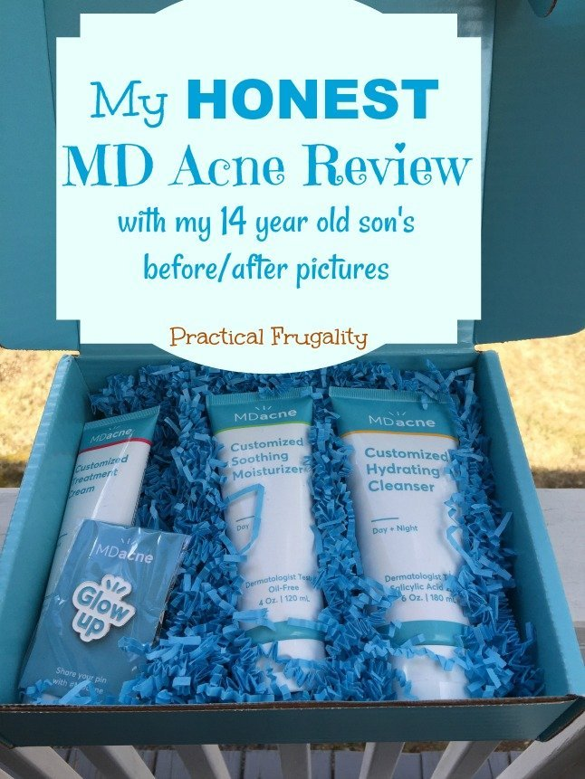 MD Acne Review